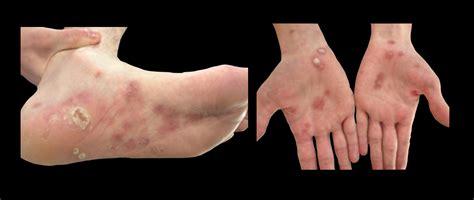syphilis rash on hands diagnosis syphilis diagnosis