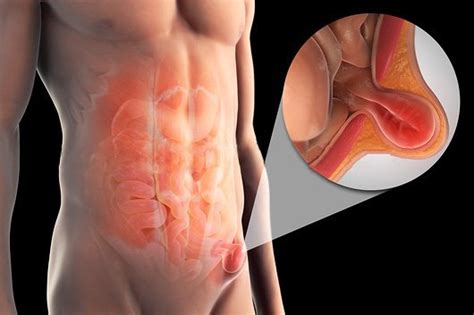 ernia inguinale interna cirurgias dr daniel martone
