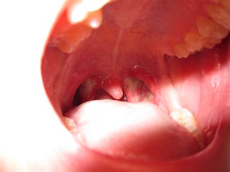 bumps on tonsils sore throat the gallery for gt white spots in throat std