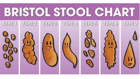 Brown Sticky Stool by Here S What Your Stool Can Tell You About Your Health