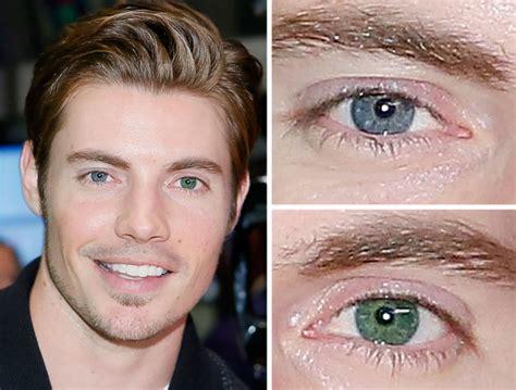 colore degli occhi diversi foto sguardo i divi con gli occhi diversi 17 di 18