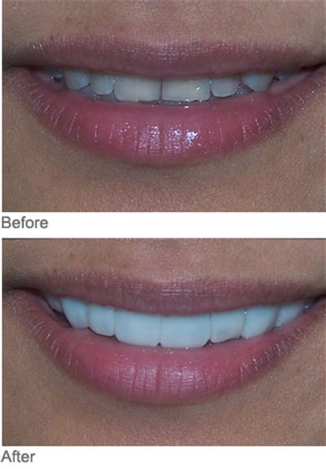 tetracycline stained teeth myles williams dds atlanta