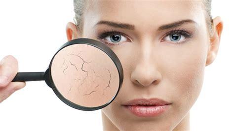 Obat Alami Kulit Kering 8 cara alami atasi kulit kering 1000 fakta unik dan menarik