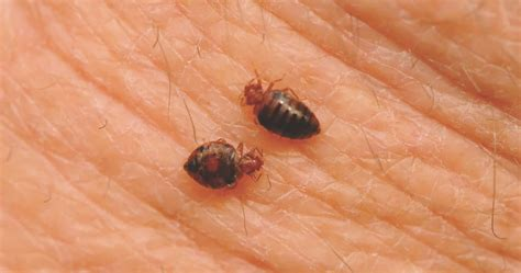 long  bed bug bites itch tips  facts  bed