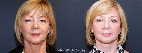 hairstyle to avoid sunken face saggy face exercise short hairstyle 2013