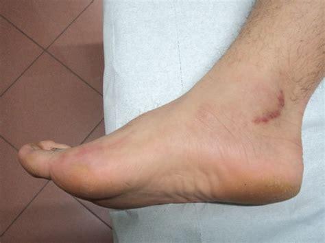 tendinite caviglia interna nervenschmerzen im fu 223 neurom diabetische neuropathie