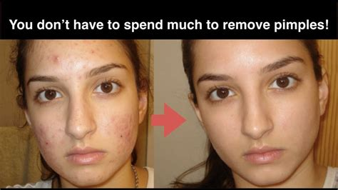 home remedies to make you go to the bathroom how to get rid of acne fast 10 natural home remedies