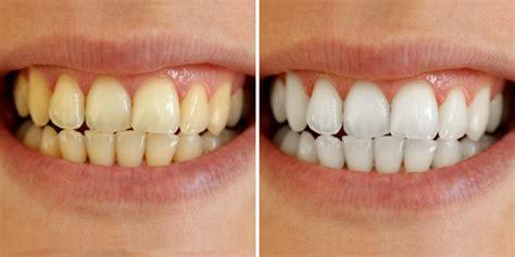 vaughan teeth whitening dentist vaughan