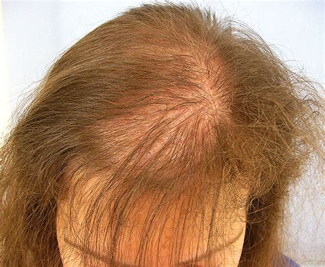 female pattern hair loss during pregnancy hair loss treatment for women in lahore