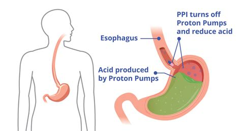 How Proton Inhibitors Work by Proton Inhibitors How A Ppi Works And Side Effects