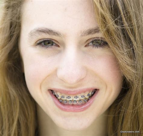 brace hair 60 photos of teenagers with braces oral answers