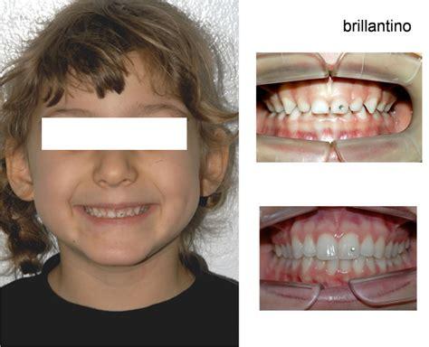 testi dente ortodonzia estetica studio odontoiatrico casadei testi