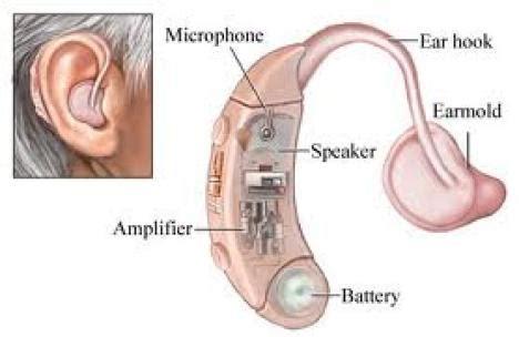 Alat Bantu Pendengaran Orang Tuli cara kerja alat bantu dengar komponen dan fungsinya