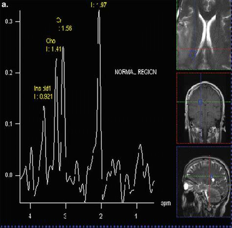 Proton Magnetic Resonance Spectroscopy by Proton Magnetic Resonance Spectroscopy And Spectroscopic