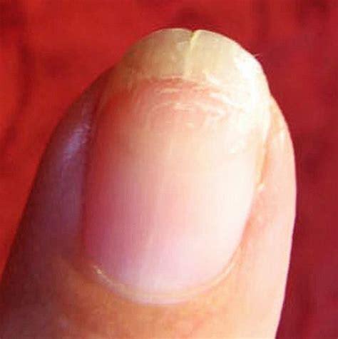 split nail how to repair split nails leaftv