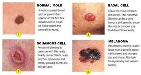 skin cancer dermatologist  bethesda md
