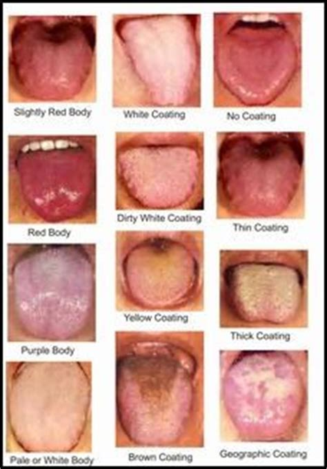 diagnosis tongue traditional health and therapy