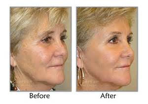 fractional co2 laser resurfacing utah plastic surgeon
