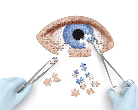 Could There Be A New by Non Surgical Cataract Treatment River Home Care