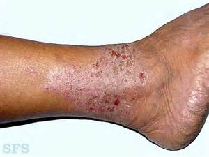 itchy legs causes and treatment healthhype
