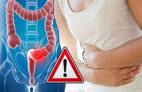 colon cancer symptoms   knoweven  youre young