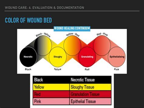serosanguinous color serous wound drainage color pictures to pin on