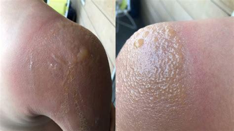 banana boat sunscreen burns 2018 health canada testing banana boat sunscreen products as