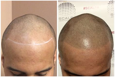 Scalp Micropigmentation In Pakistan | smp hair the best hair of 2018