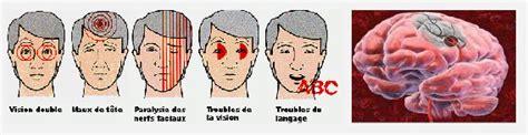 aneurisma carotide interna la carotide sp 233 cialit 233 du dr jean ichou chirurgien