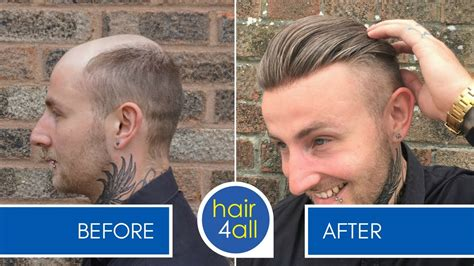hair replacement system how to apply attach a non surgical hair replacement