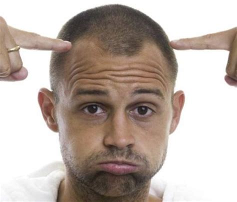 male hair loss pattern due to stress there is a scientifically proven surefire way to avoid