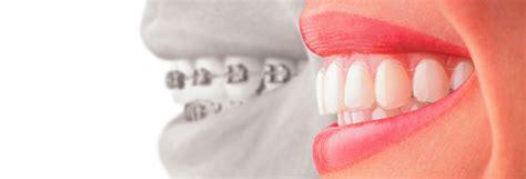 les bonnes questions 224 se poser avant de refaire sa cuisine les trucs 224 savoir pour la pose d un appareil dentaire