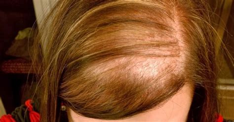 women hair loss long or short hair hair loss in women 6 home remedies health top priority