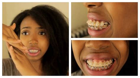 how to hide an overbite adult braces journey part 6 update powerchains pain