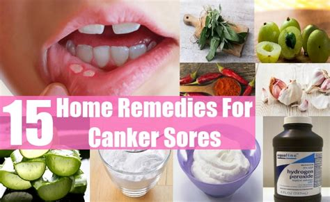 15 home remedies for canker sores style presso