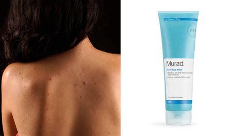 banish   chest acne treatments  body acne allure