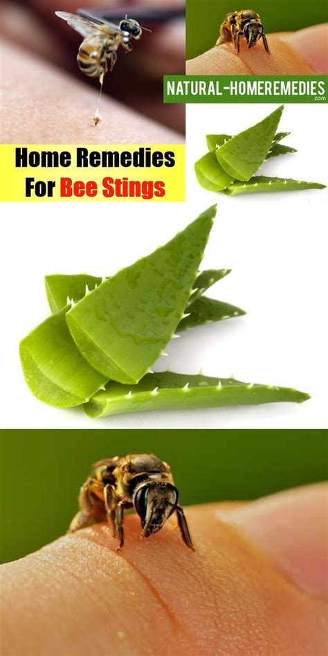 home remedies for bee stings swelling and breathlessness