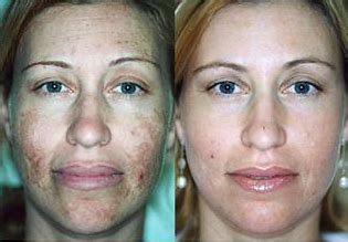 e one ipl session before and after on man and woman face ipl photofacial for facial rejuvenation