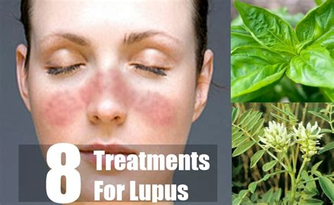 lupus naturally image mag