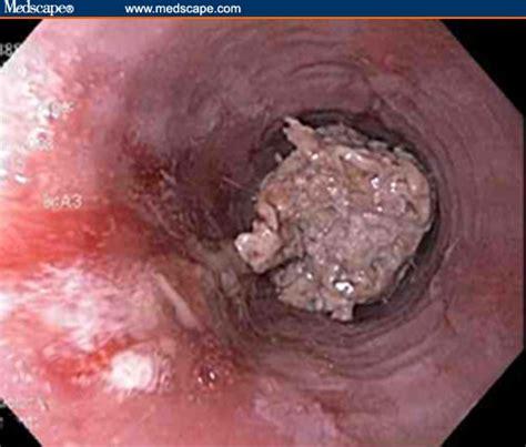 icd 10 food impaction esophagus nmcp em academics