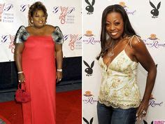 Richie Denies Gastric Bypass Surgery by Before And After Weight Loss Jones