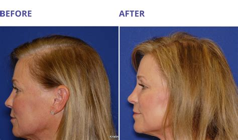can platelet rich plasma stop hair loss and grow new hair non surgical hair restoration amara medical aesthetics