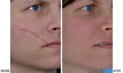 plastic surgery for c section scar طرق علاج اثار الجروح القديمة طبيعيا