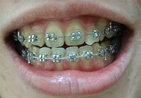 black color braces the gallery for gt pretty braces colors combinations