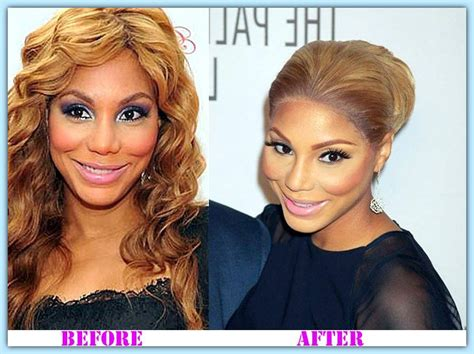 tamar braxton nose job before after tamar plastic surgery before and after pictures to pin on