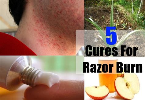 best and effective ways to cure razor burn naturally usa