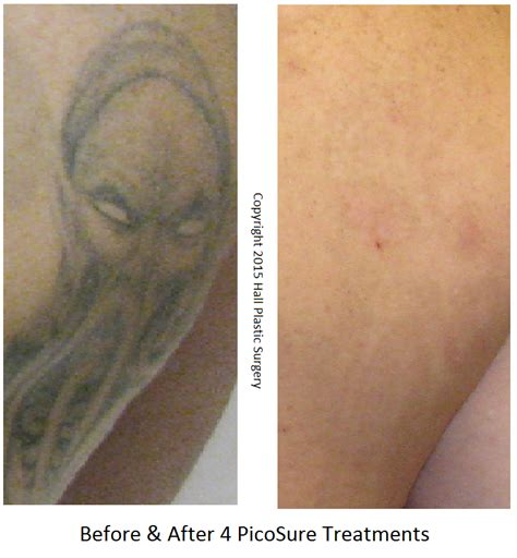 purple tattoo removal picosure removal before after photos
