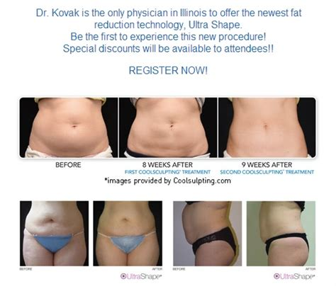 Coolsculpting Sweepstakes - botox laser liposuction cellulite reduction chicago plastic surgery and cosmetic
