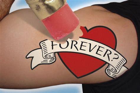laser tattoo removal belfast 100 100 removal cost uk best laser