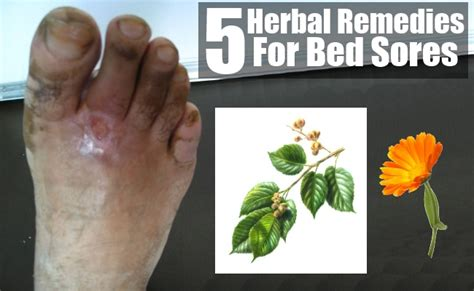 treatment for bed sores bed sores herbal remedies treatments and cures natural